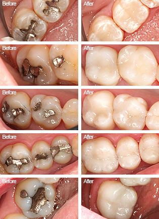 Tooth Colored Fillings | Jeffrey Burns, D.M.D.